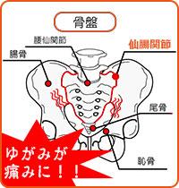 仙腸関節症